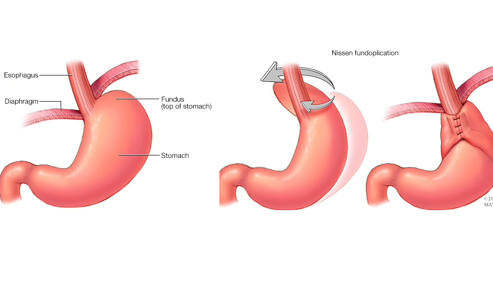 Laparoscopic repair of paraoesophageal and giant hiatus hernias