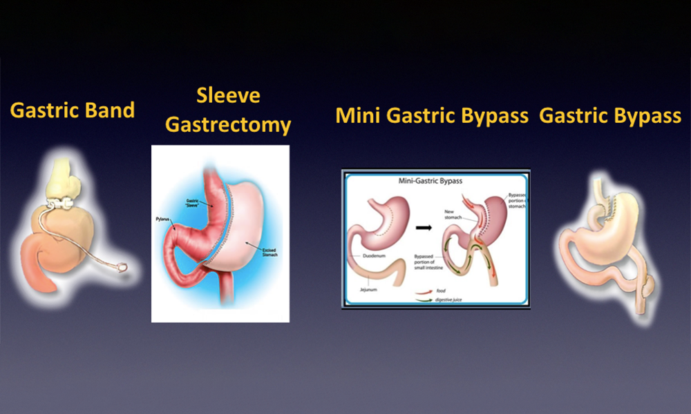 BARIATRIC (WEIGHT LOSS/OBESITY SURGERY) PROCEDURES