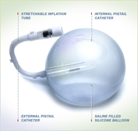 Endoscopic insertion of Gastric Balloon