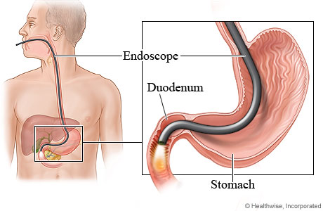 Endoscopy (Gastroscopy)