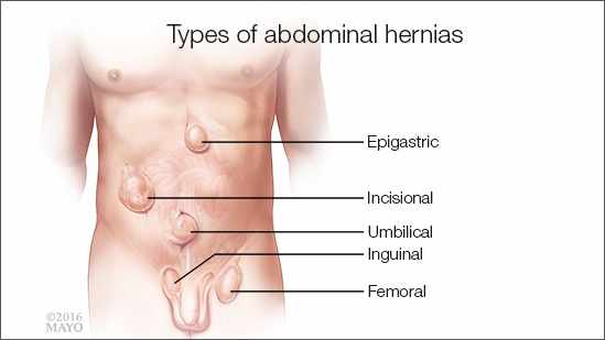 Abdominal & groin hernia repairs