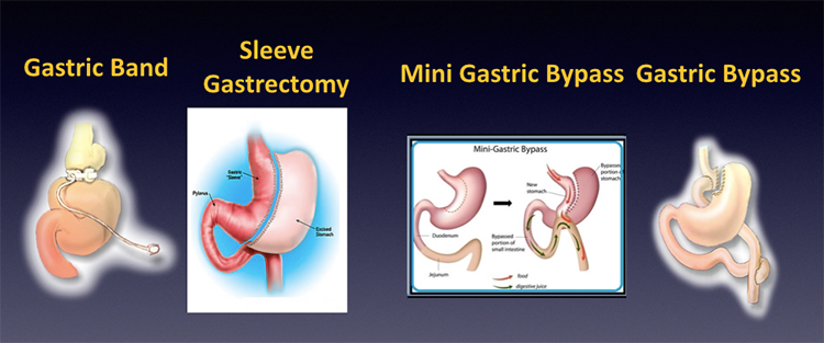 Laparoscopic Revisional Bariatric Surgery