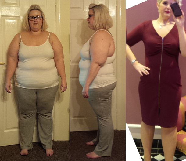 LC Gastric Bypass July 14