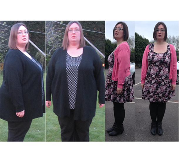LS Gastric Bypass 2014